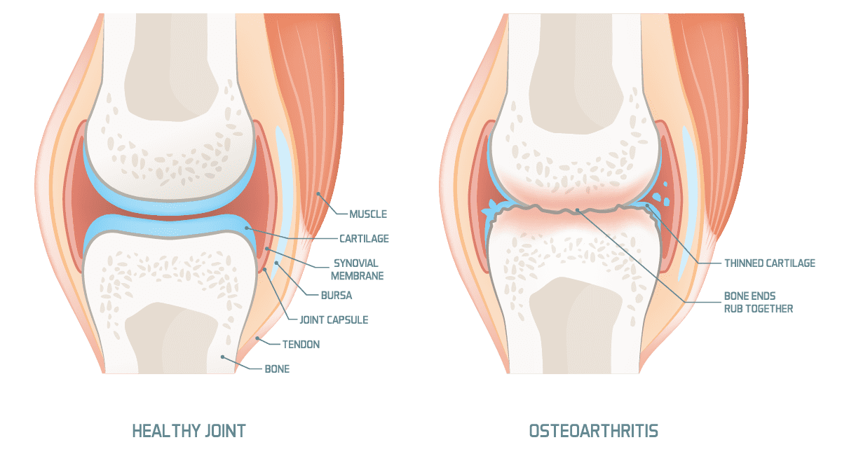 Arthritis Of The Knee