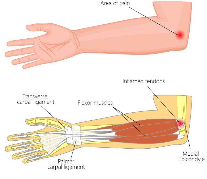 Medial Epicondylitis Elbow Pain